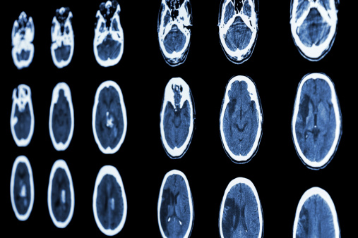 Brain CT scans