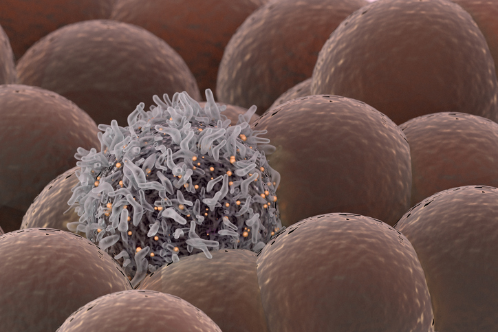 cancer cell among healthy cells