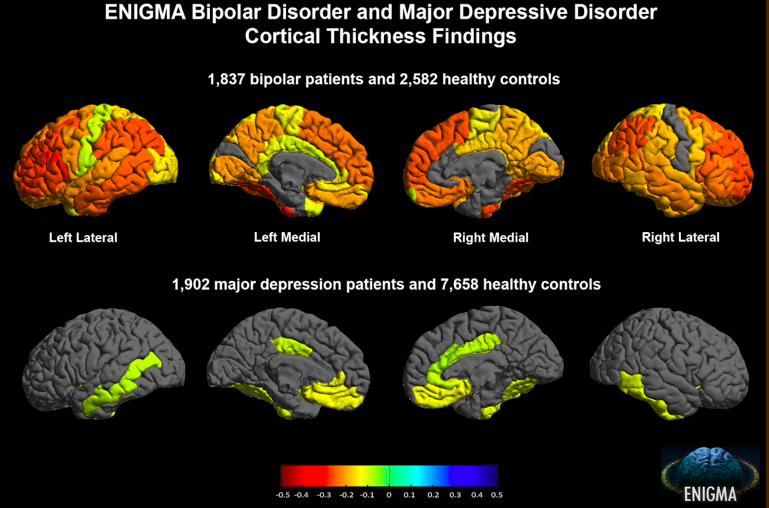 ENIGMA bipolar disorder and major depressive disorder cortical thickness findings