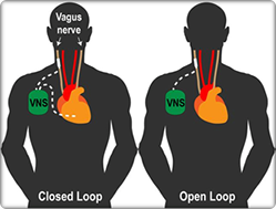 Graphic image of two body forms with Vague Nerve Stimulator device implanted, depicted in both a closed loop on the left body form, and an open loop in the right body form.