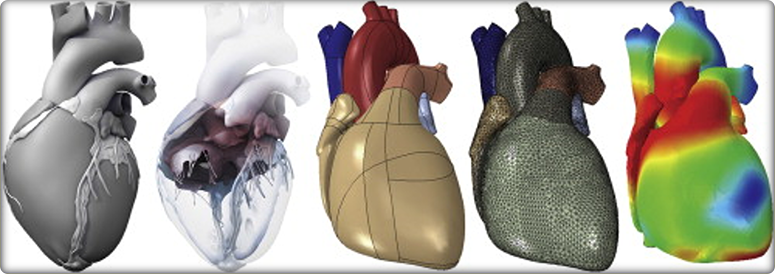 Combined graphic showing five different variations of an internal organ.
