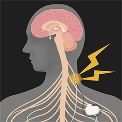 Illustration of vagus nerve stimulation (VNS) device