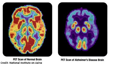 PET scan of normal brain and Alzheimer's brain