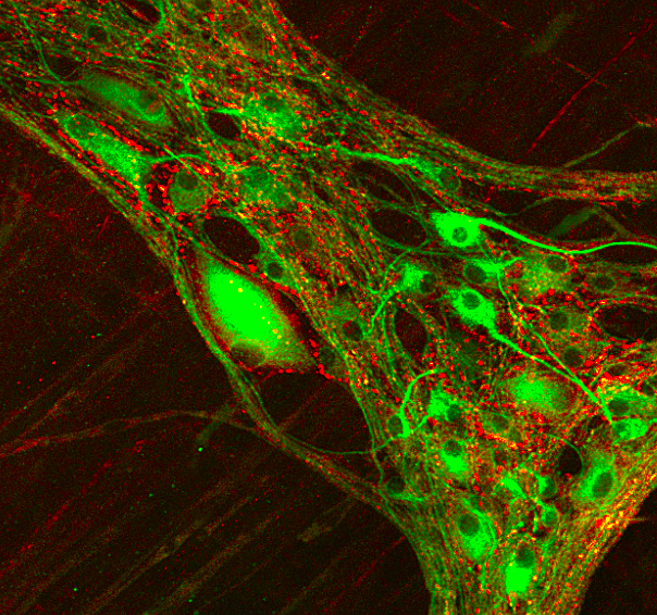 Cross talk between extrinsic (red) and intrinsic (green) cholinergic innervations in the pig colon