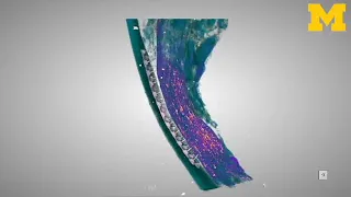 Micro CT of Microneedle Array in Vagus Nerve