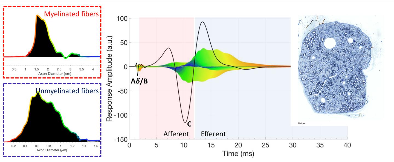 Nerve Response Decoder