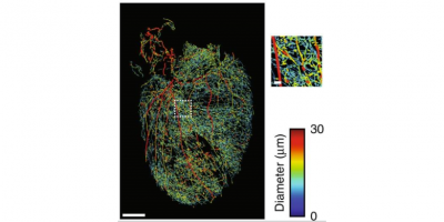 Image of a 3D visualization of the intricate circuits in the heart that receive input from nerve structures like the spinal chord and the vagus nerve