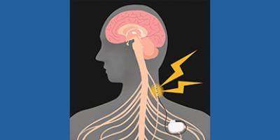 Image of Vagus Nerve Stimulation (VNS) device