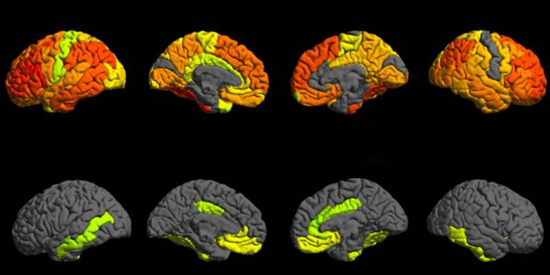 Big Data to Knowledge - Imaging from the study that shows brain scans.