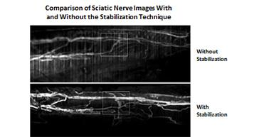Comparison of Sciatic Nerve Images With and Without the Stabilization Technique