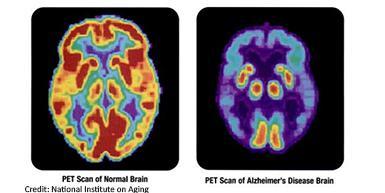 PET scan of a normal brain and Alzheimer's brain