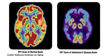 PET scan of a normal brain and Alzheimer's brain