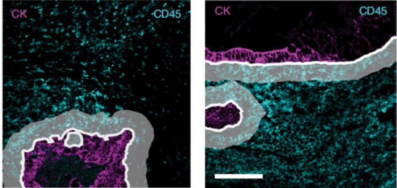 scMEP - showing immune cells as they surround colorectal tumor cells.